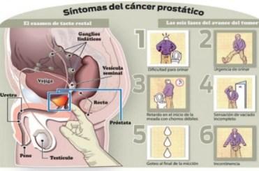 imágenes reales de cáncer de próstata